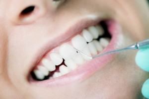 save-on-dental-benefits-teeth-cleaning-facts-1000x6681